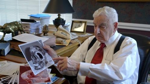 werner spitz médico legista mostrando o crânio de cathy cesnik